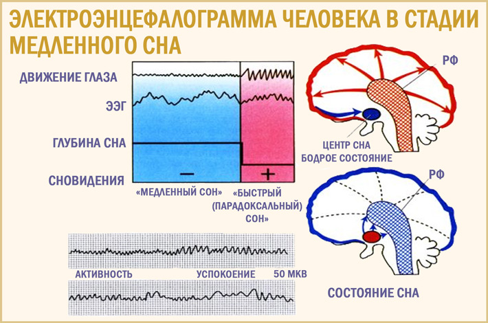 Электроэнцефалография сна. Стадии сна по ЭЭГ
