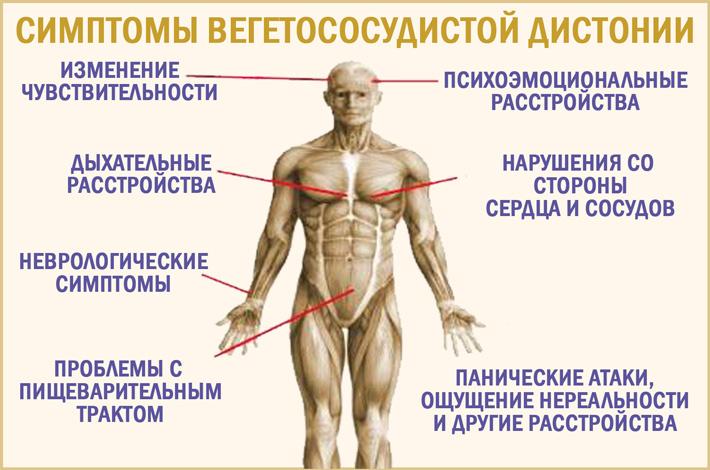 Вегето-сосудистая дистония (ВСД): симптомы