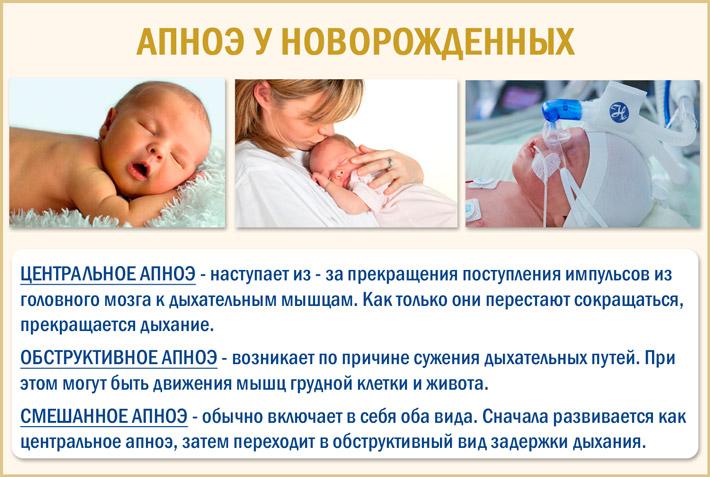 Апноэ у младенцев