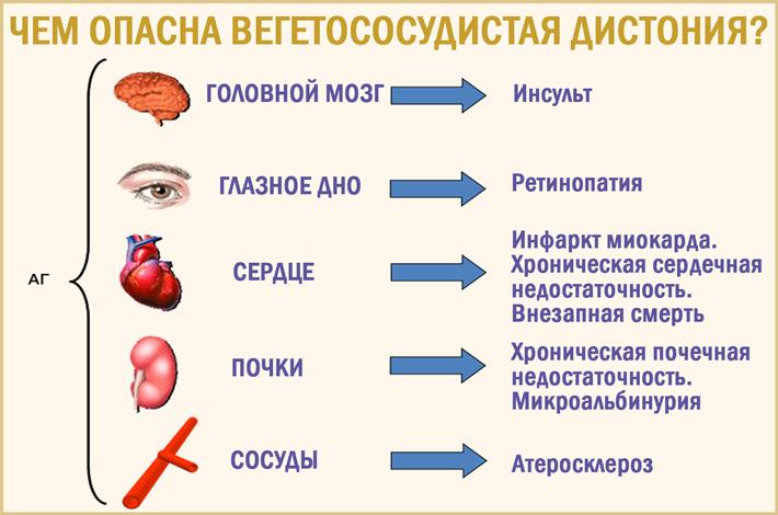 Опасна ли вегето-сосудистая дистония (ВСД)