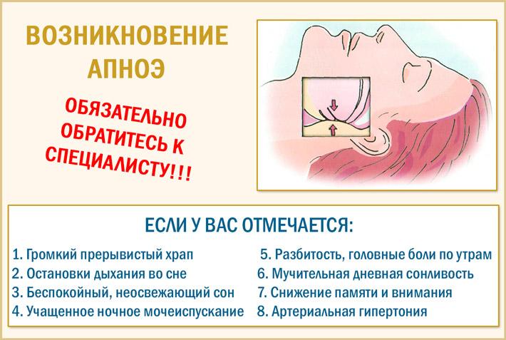 Возникновение апноэ