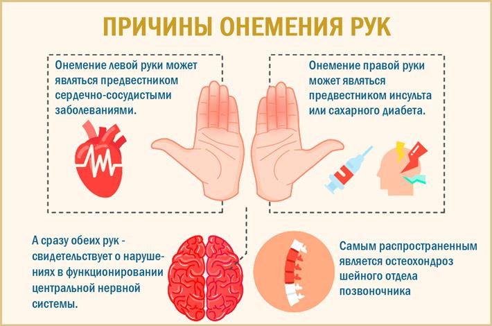 От чего немеют руки