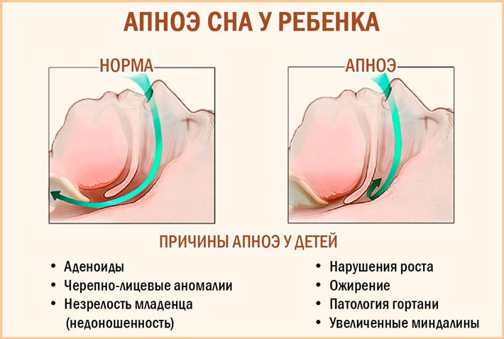 Причины апноэ у детей