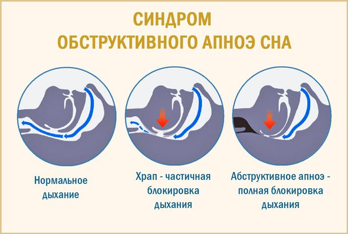 Синдром абструктивного апноэ