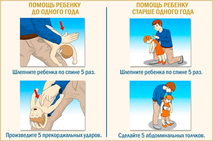 Оказание помощи ребенку при асфиксии