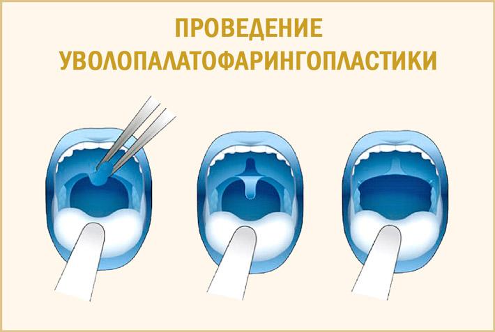 Уволопалатофарингопластика
