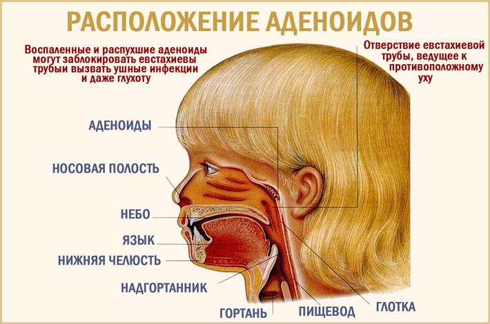 Аденоиды в носу у ребенка
