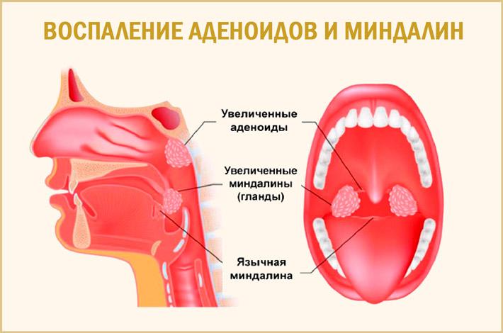 Воспаленные аденоиды и миндалины