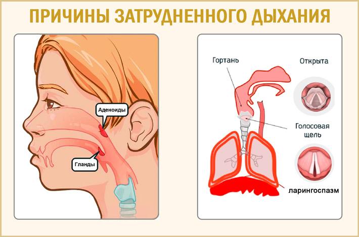 Причины тяжелого дыхания