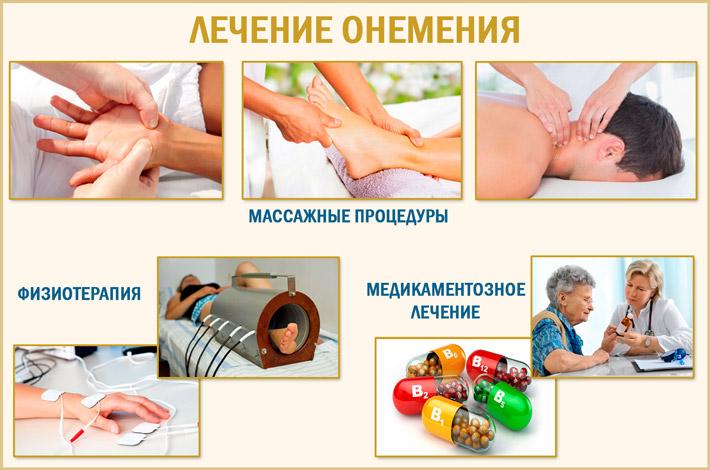 Лечение парестезии рук и ног