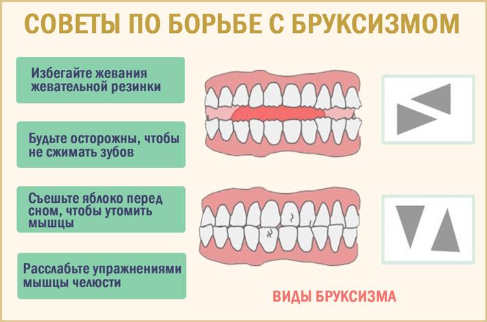 Как справиться с ночным скрежетом зубами