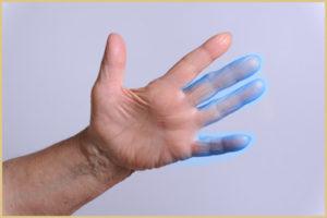 Почему немеют пальцы рук по ночам