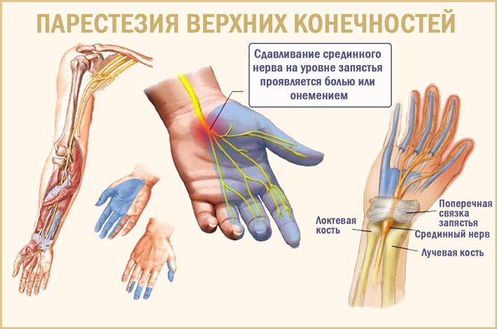 Боли и парестезии в верхних конечностях