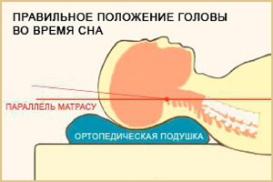 Подушка при остеохондрозе