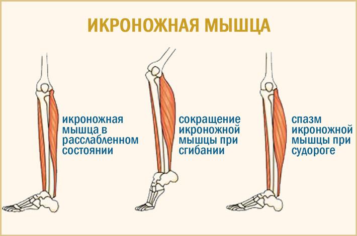 Икроножные мышцы при спазме