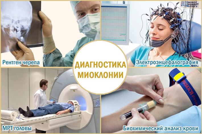 Проведение диагностики миоклонии