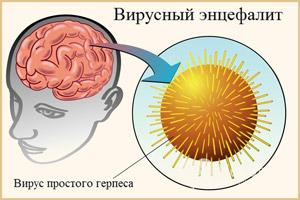 Поражение вирусным энцефалитом